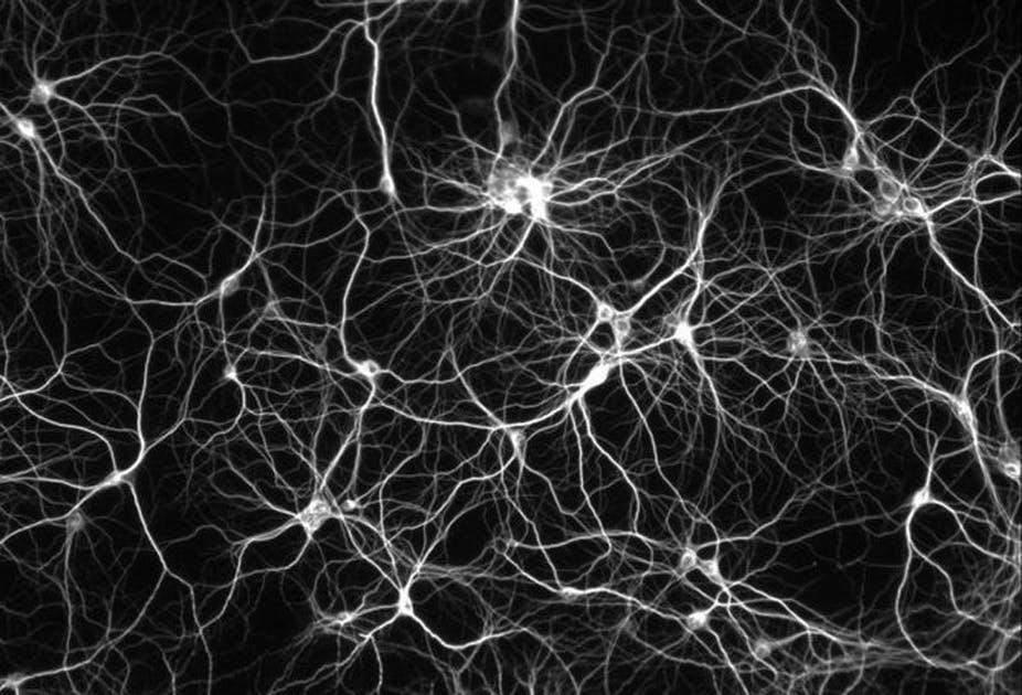 neuronales Netzwerk Unterbewusstsein